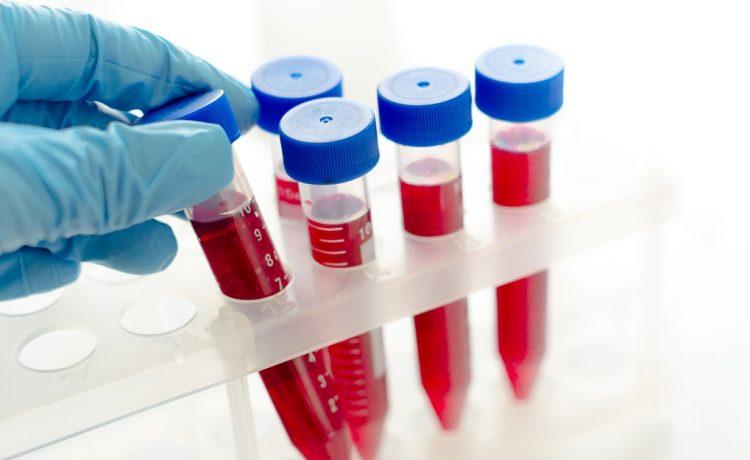 inzulinrezisztencia vizsgálat budapest