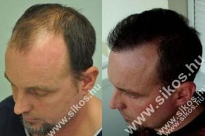 Hajátültetés